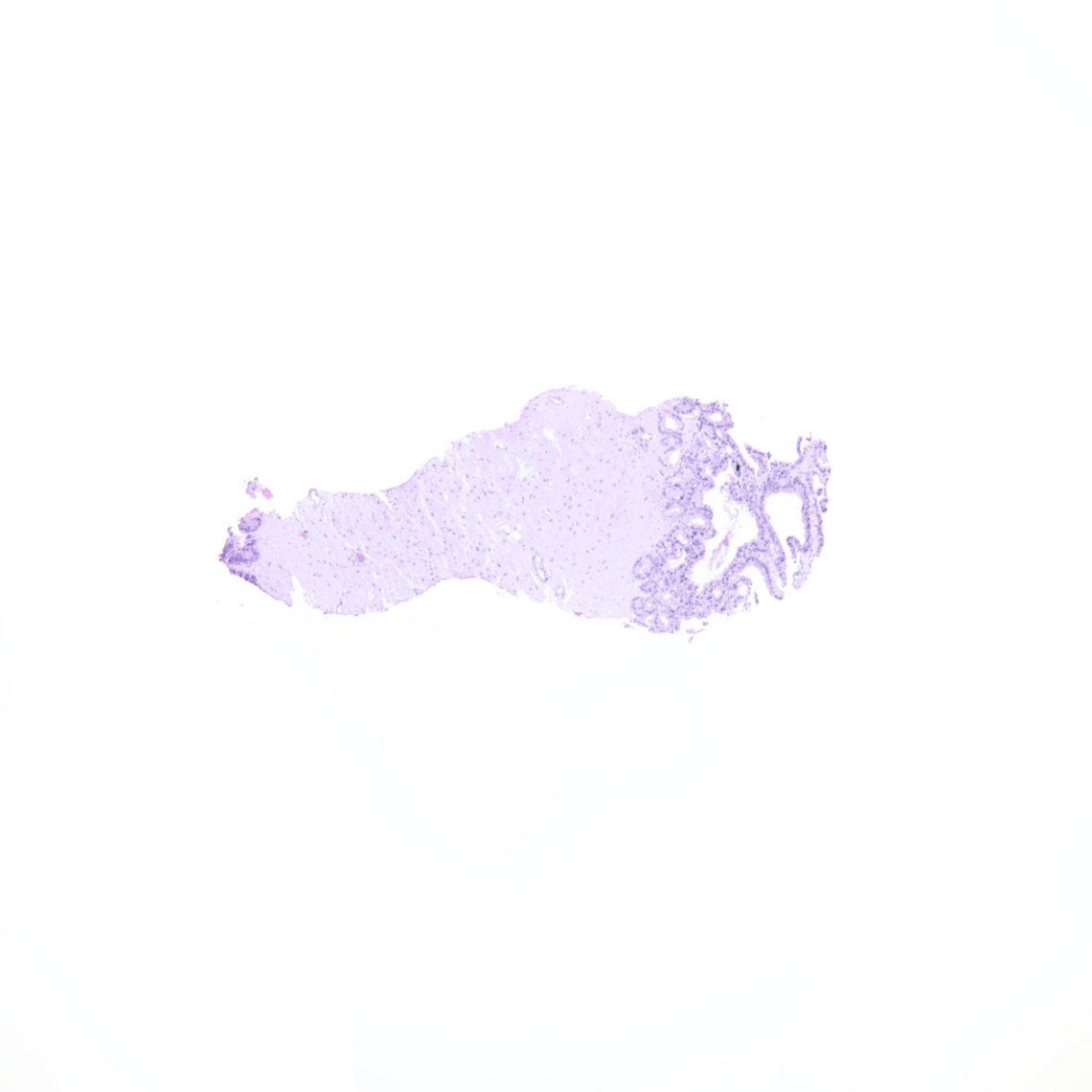 ves-9524_95-5x